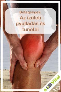 Vitaminspecialista - Izületi fájdalom kezelése természetes módszerekkel