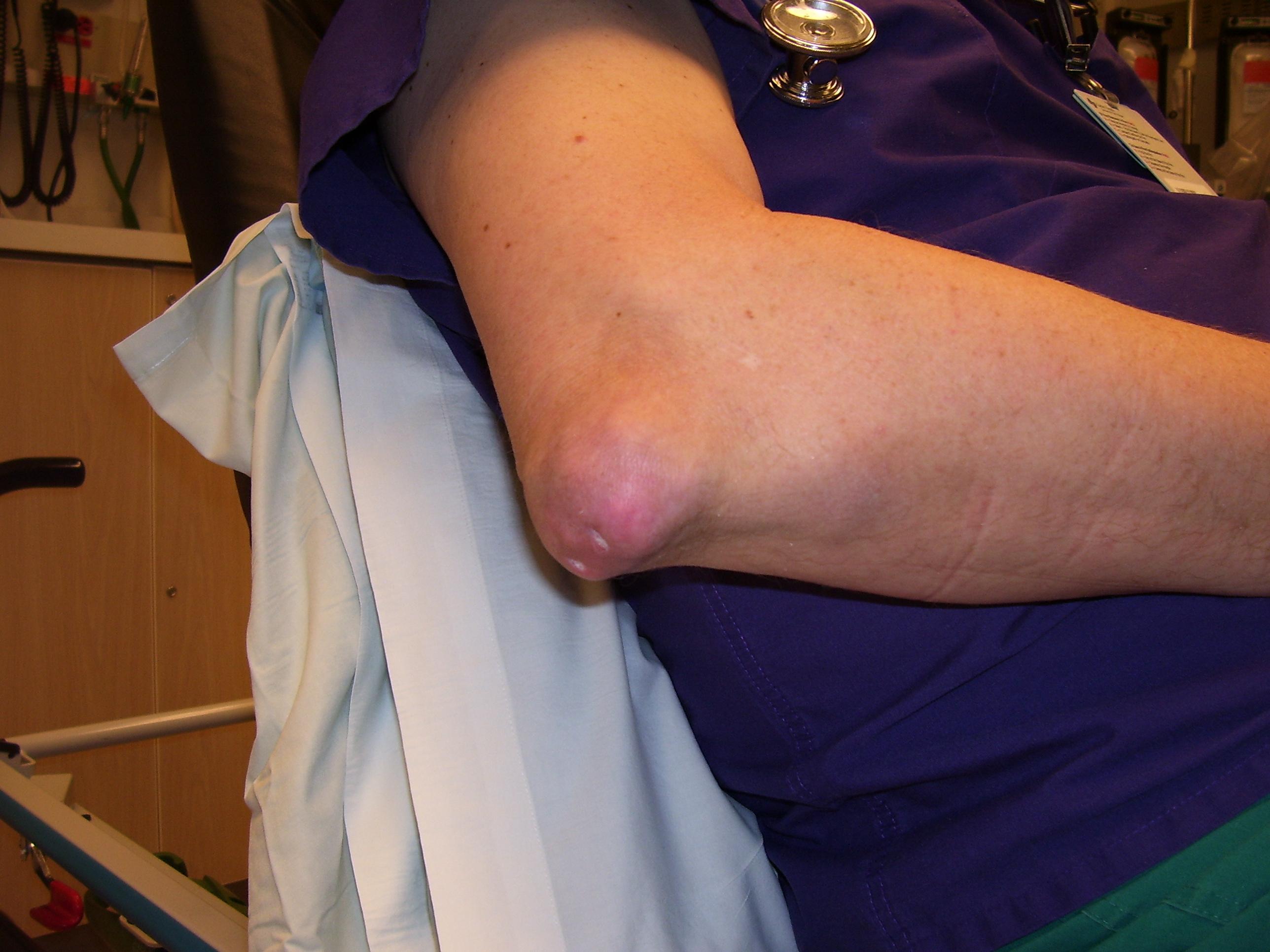 paraziták ízületi fájdalma csípőízület és lábak fájdalma