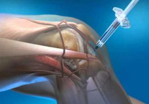 artrózis intraartikuláris injekció kezelése zárt ízületi csontkárosodás