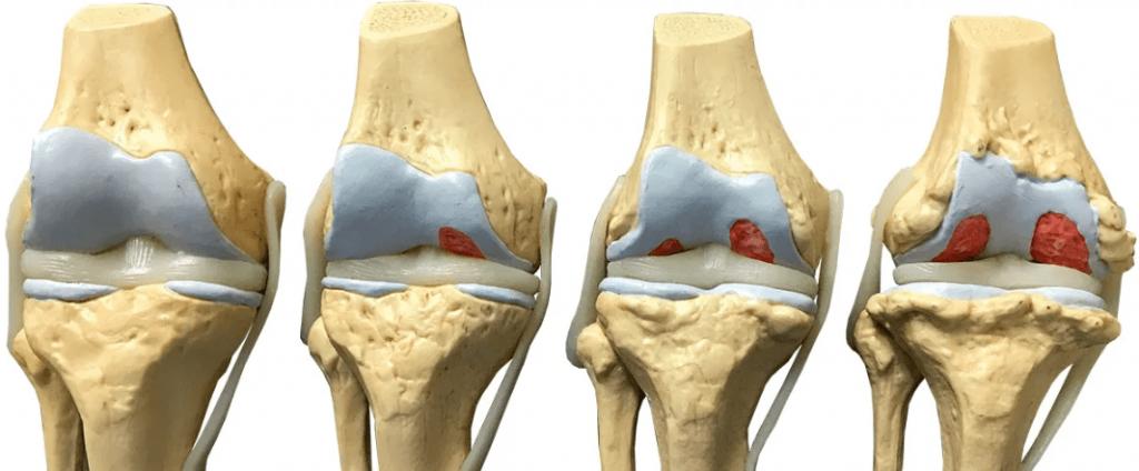 A legjobb kezelés az ízületek arthrosisában. Hogyan kezeljük az artrózist otthon - ízületek