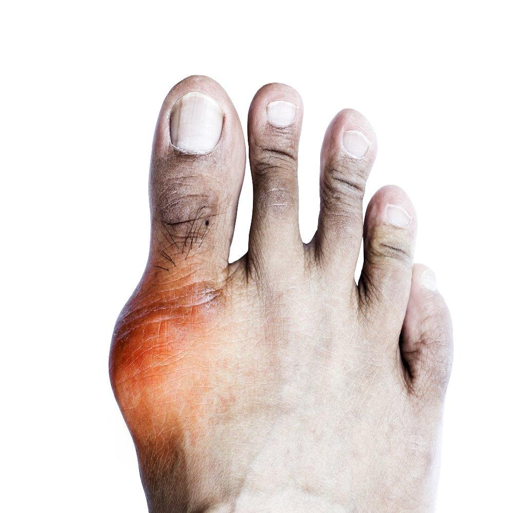 mi az ujjak artrosis és ízületi gyulladás