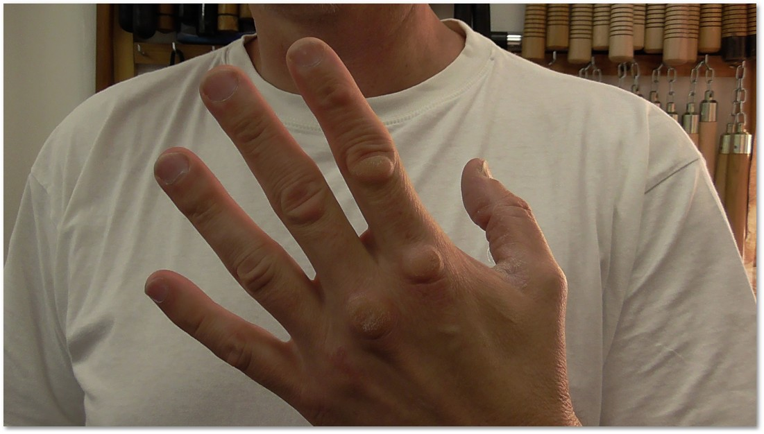 a bokszolás után fáj az ujjak ízületei)