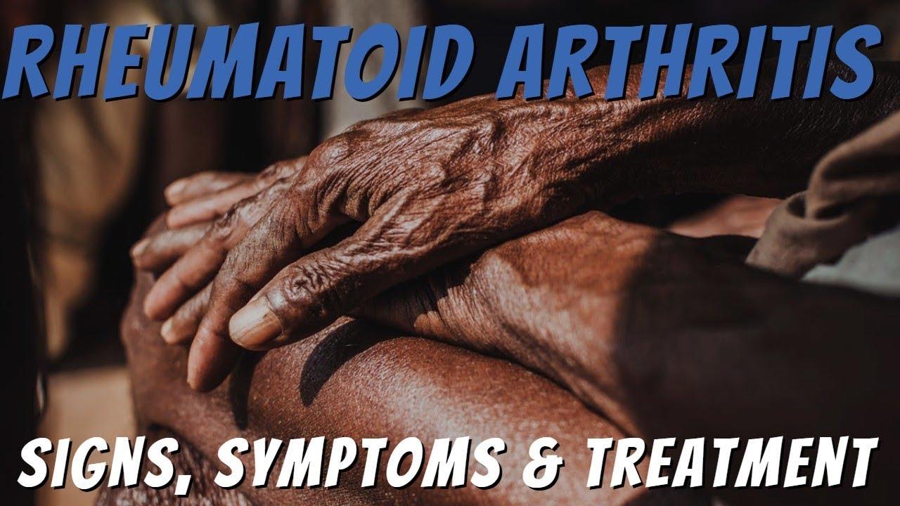 a csípőkészítmények artrózisa