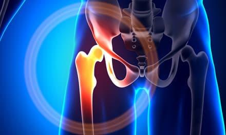 a csípőízület kötésének sérülése)