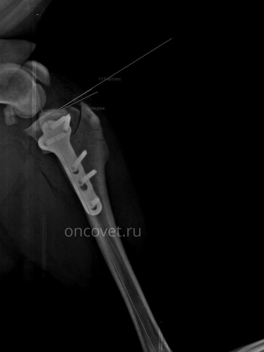 a könyökízület oldalsó epikondilitiszének kezelése kenőcsrel)