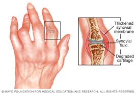 a rheumatoid arthritis melegíti az ízületeket