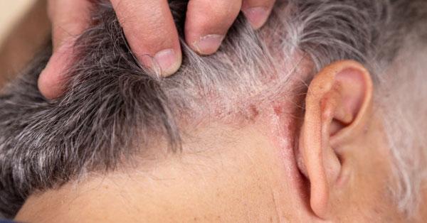 psoriasis ízületi gyulladás, ahol kezelik