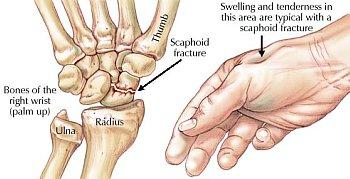 scaphoid scaphoid artritisz kezelése
