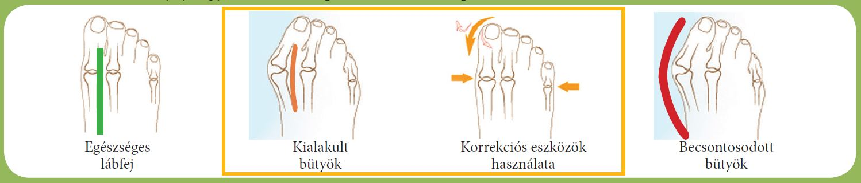 achillobursitis boka kezelése)