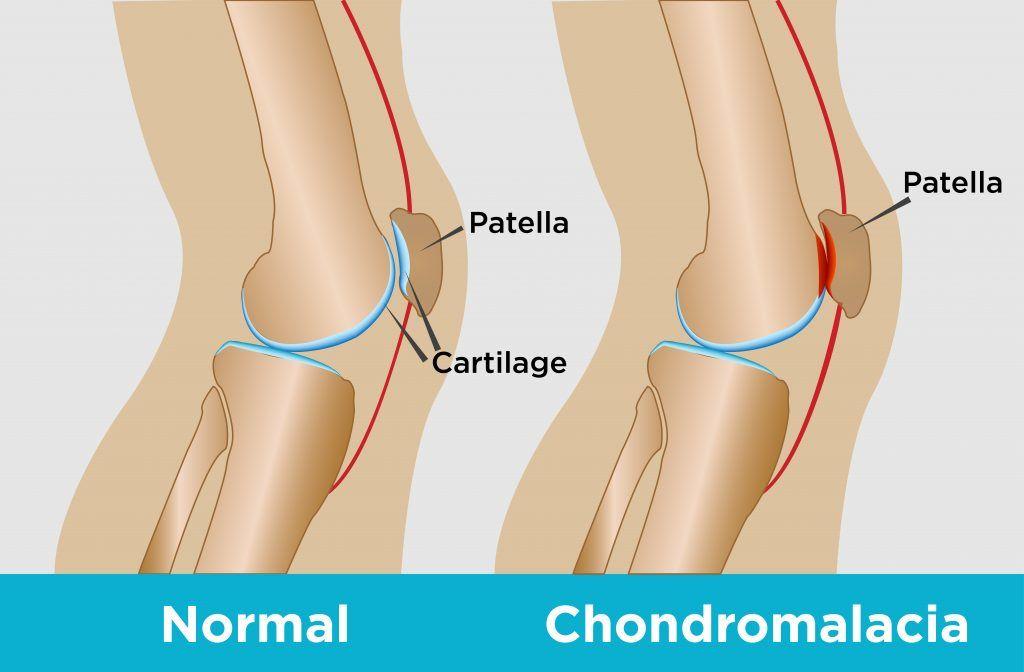 arthrosis a lábak ízületein