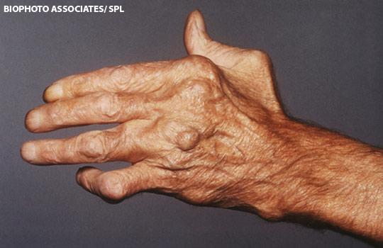 kenőcsök az ízület ízületi gyulladásának kezelésére hogyan lehet legyőzni az ujjgyulladást