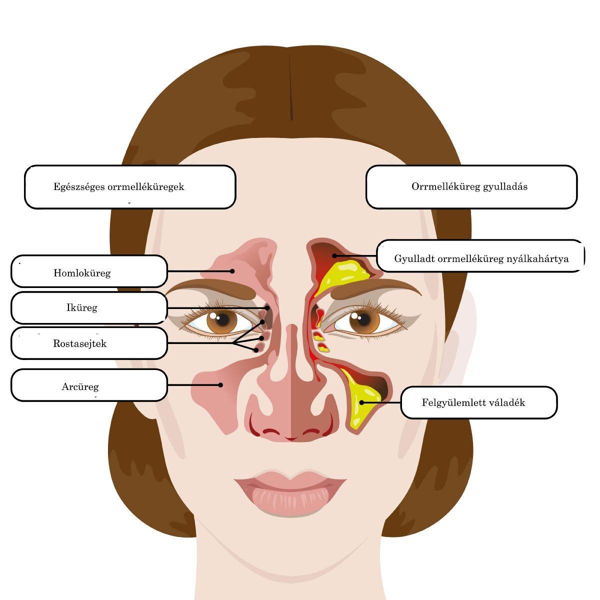 az arccsont ízületi betegsége)