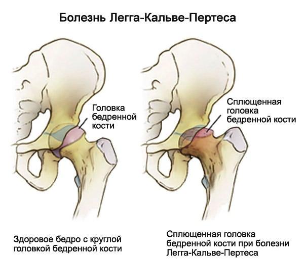 Csípőizületi Dysplasia