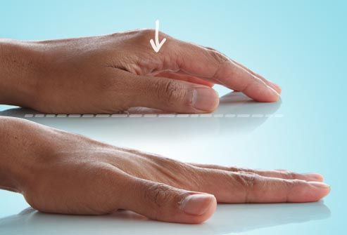 csípő artroso artritisz