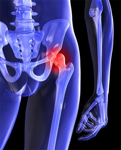csípőfájdalom gyógyszere a karízület ízületi gyulladásának kezelése