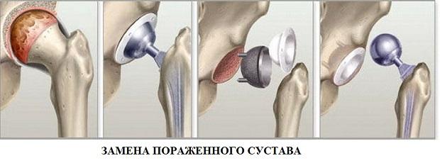 A csípőízület coxartrózisának hatékony kezelése - Masszázs July