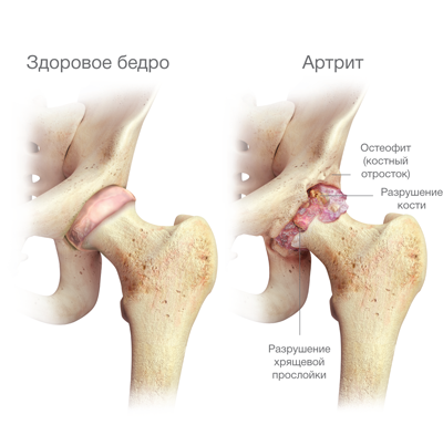 csípőízület kóros artrózisa)