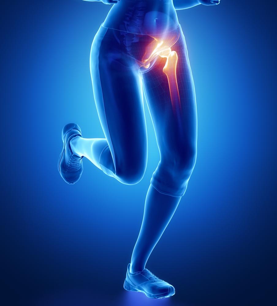 hogyan kell kezelni a csípő-sprain-et