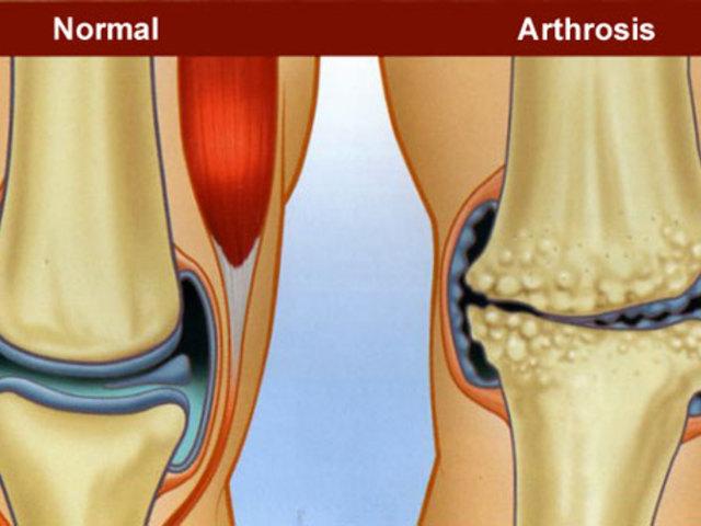 készítmények artrózis kezelésére hialuronsavval)