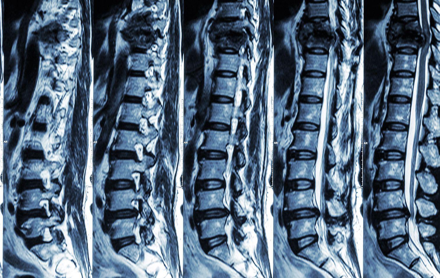 degeneratív degeneratív betegségek a gerinc és a nagy ízületek