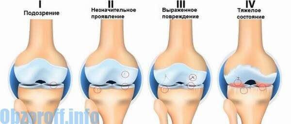 disztrofikus ízületi betegség)