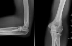 ízületi gyulladás hogyan kezelhető vélemények fájdalom a kéz térdízületeiben