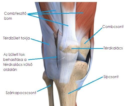 A medialis meniszkusz hátsó szarvának sérülése