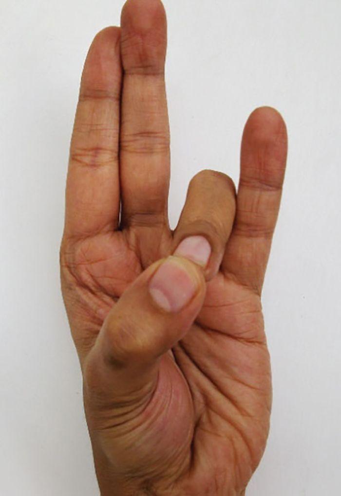 coccyx arthrosis kezelés)