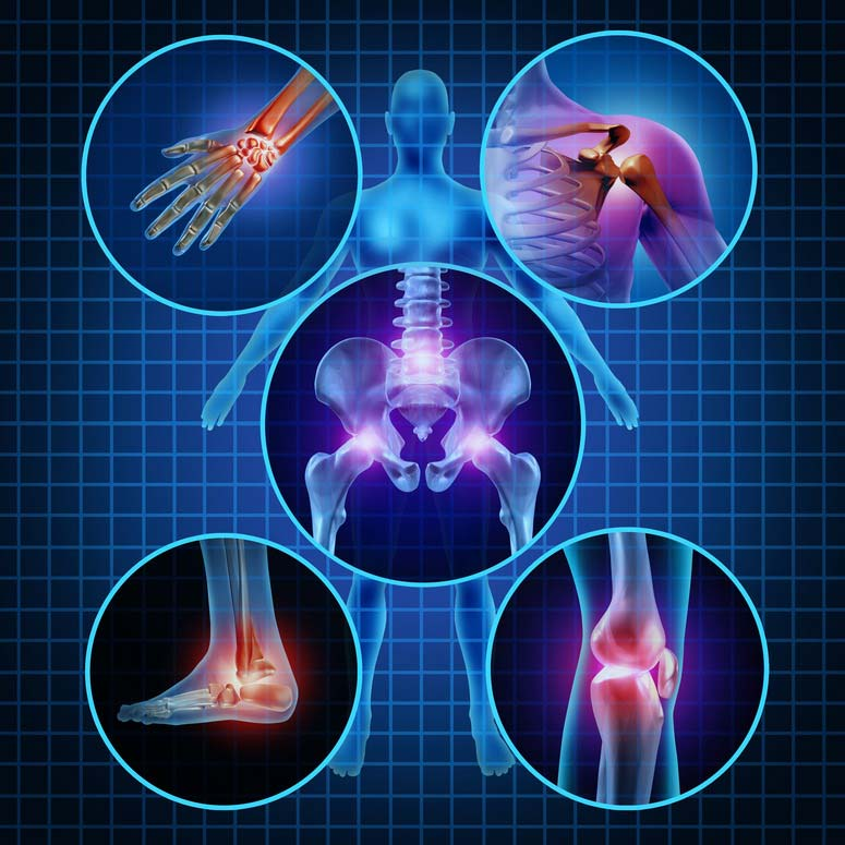 a térd nagyon fáj izomfájdalom a lábak karjainak ízületeiben