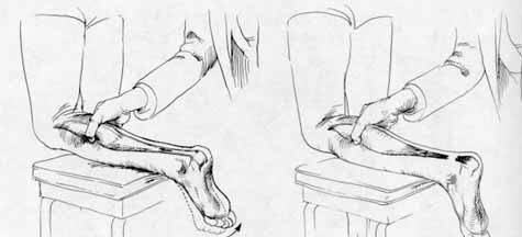 enyhíti a csípőgyulladást