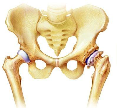 csípőízületi gyulladás okai és kezelése