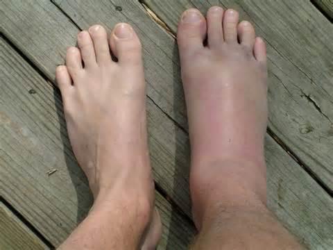 hogyan lehet eltávolítani a duzzanatot a láb ízületéről