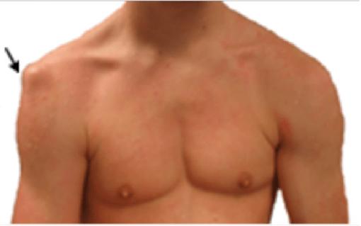 kenőcs a vállízület ligamentumainak törésére