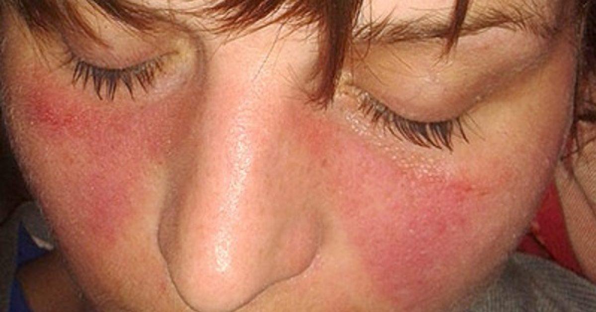 kötőszöveti betegség tünetei