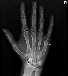 kéz törés elmozdító kezeléssel tompa és fájó ízületi fájdalmak
