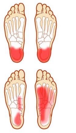 lábfájdalom az ízületnél a saroknál