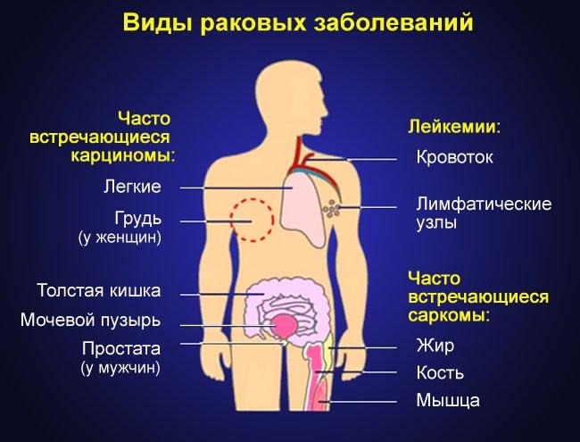 mi a deformáló artrózisa a csípőízületekben)