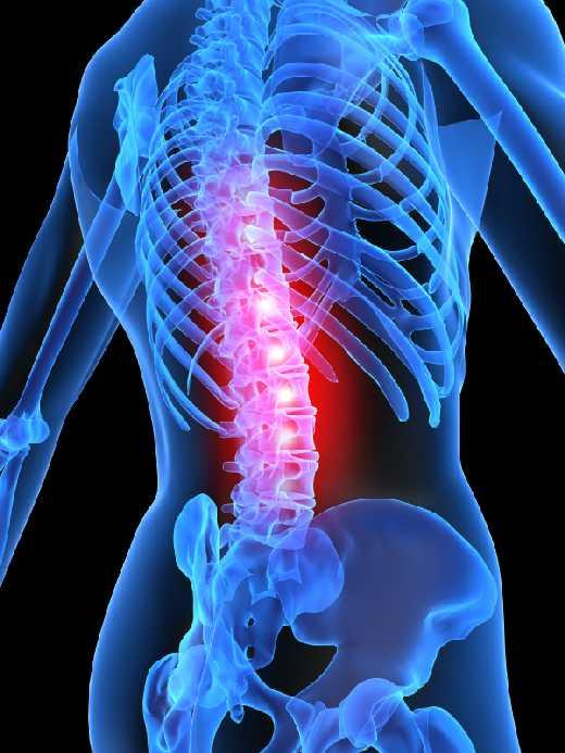 milyen gyógyszerek az ágyéki csontritkulás kezelésére