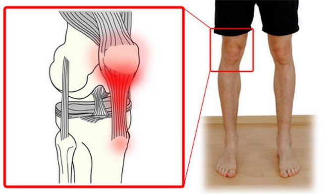 Térdfájdalom nem műtéti kezelése | sebinko.huán István ortopéd sebész praxisa