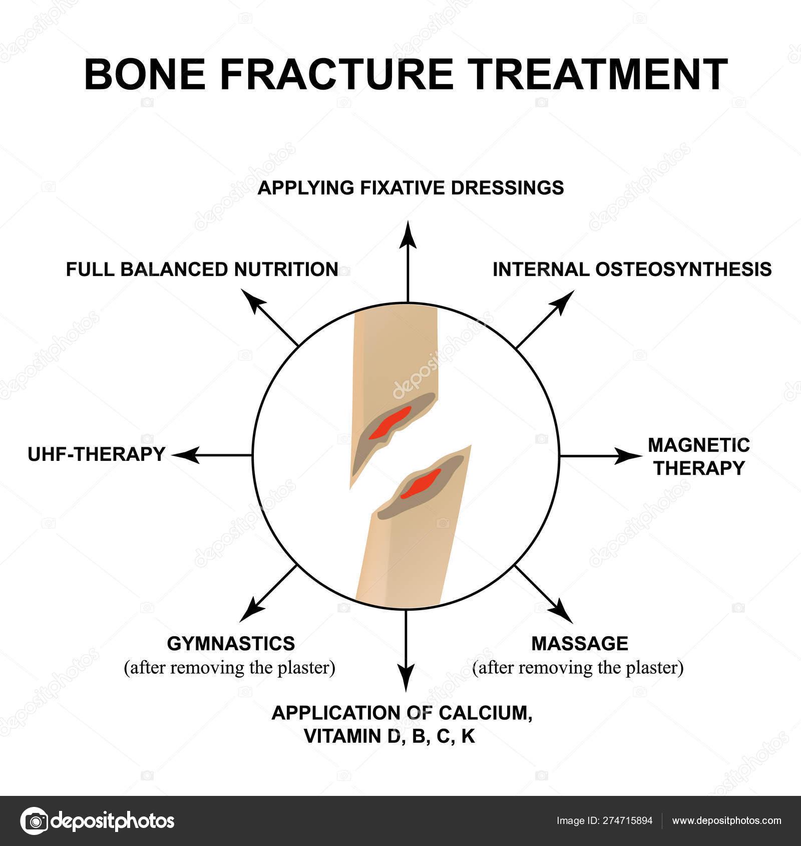 lézeres alkalmazás artrózis kezelésében mi a teendő, ha a lábak ízületei fájnak