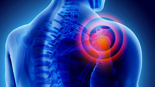 tartós fájdalom a vállízületben és a karban borostyán ízületi kezelésre