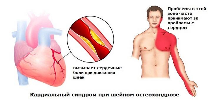 ujjgyulladás oka