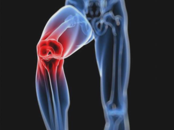 a homeopátia az artrózist kezeli duzzanat a csípőízület artrózisával