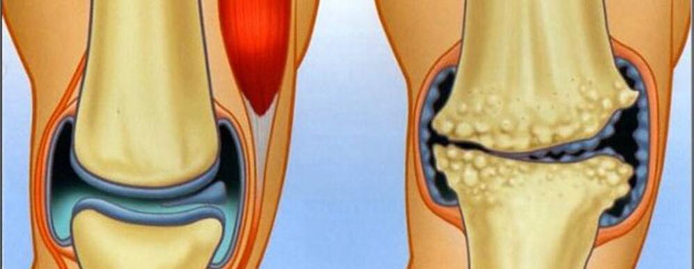 ízületi gyulladás és ízületi gyulladás kezelése időskorúaknál