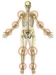 ízületi gyulladás és ízületi gyulladás mit kell kezelni nano artron közös kenőcs